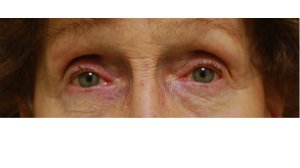 Manhattan BLEPHAROPLASTY after 3